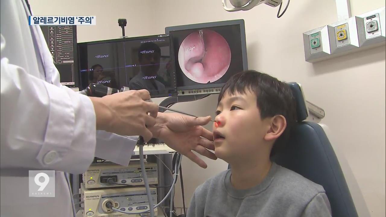 독감 이어 '알레르기 비염' 주의보…어린이 환자 다수