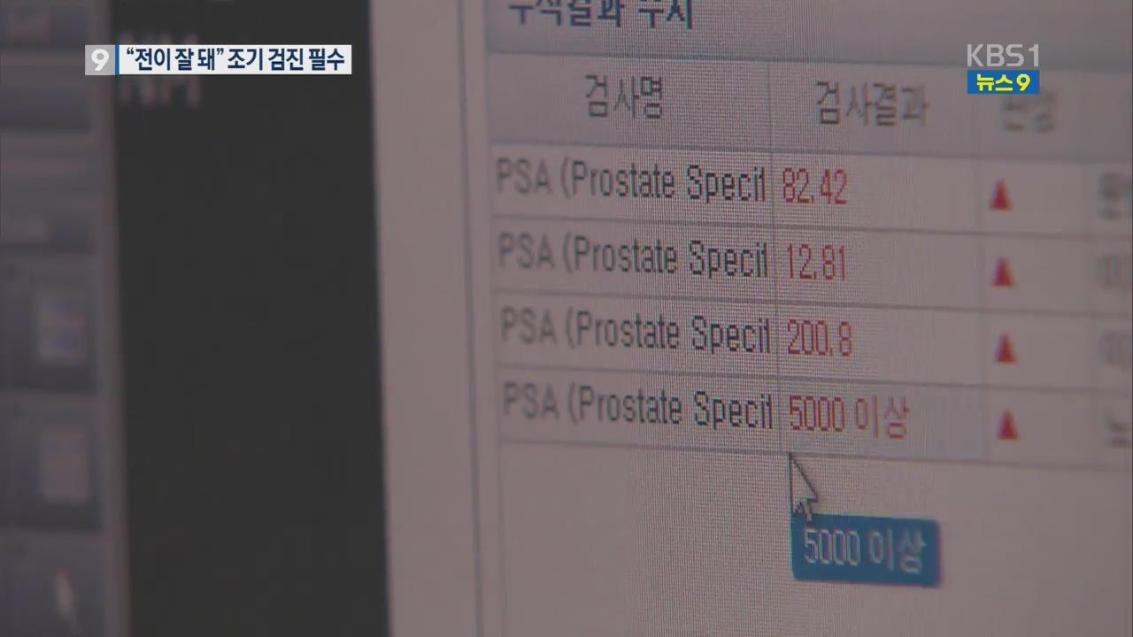 한국인 전립선암 '공격적'…조기 검진 필요