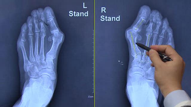 [박광식의 건강365] '발가락'이 닮았다…'무지외반증'도 유전력 있어
