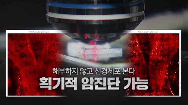 """'해부하지 않고 신경세포 본다'…""""획기적 암진단 가능"""""""